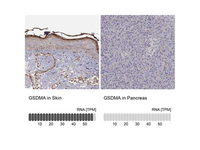 Anti-GSDMA Antibody