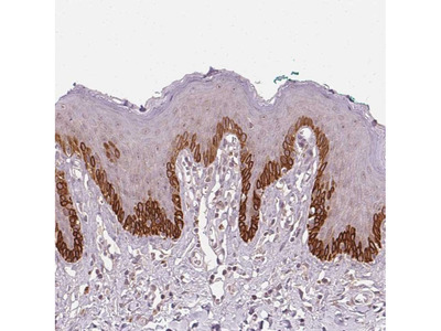 Anti-TUB Antibody
