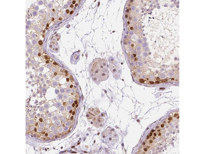 Anti-ERF Antibody