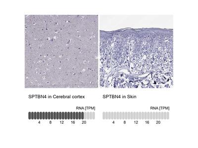 Anti-SPTBN4 Antibody
