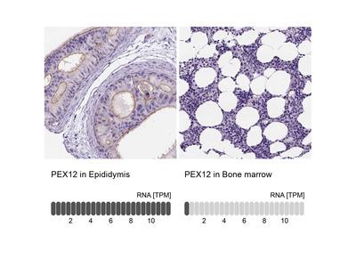 Anti-PEX12 Antibody
