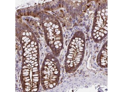 Anti-CFL1 Antibody