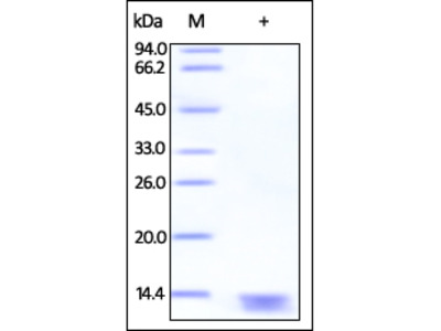 Human S100A13 Protein, Tag Free