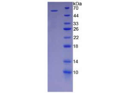 KIR2DS2 / CD158b Protein