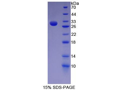 NES / Nestin Protein