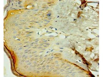 NR2C2 / TAK1 Antibody