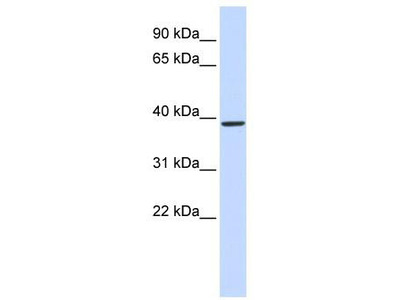 Rabbit Polyclonal Anti-QPCT Antibody