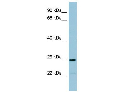 Rabbit Polyclonal Anti-NAT8B Antibody
