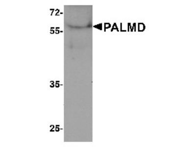 Rabbit Polyclonal Anti-PALMD Antibody