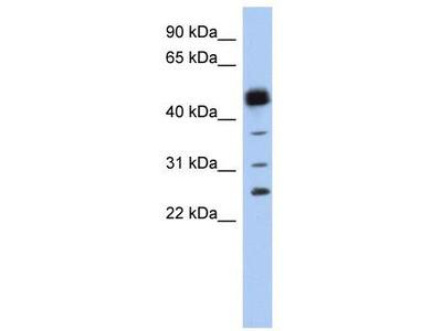 Rabbit Polyclonal Anti-PGDS Antibody