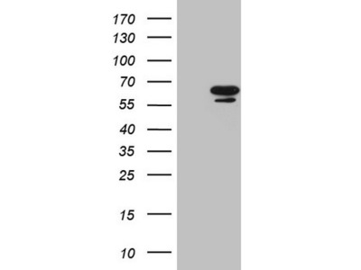 NR6A1 mouse monoclonal antibody,clone OTI6F3