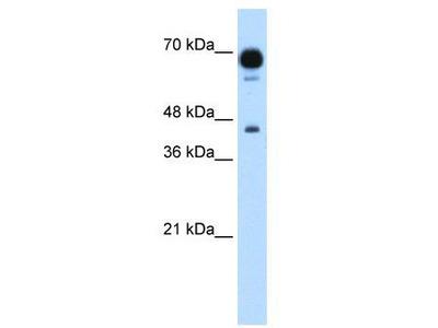 Rabbit Polyclonal Anti-PUS7 Antibody