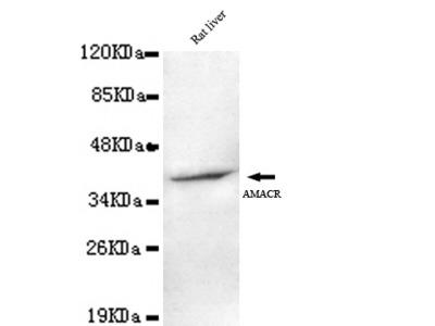Mouse Monoclonal AMACR (C-terminus) Antibody