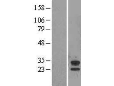 Transient overexpression lysate of abhydrolase domain containing 14A (ABHD14A)