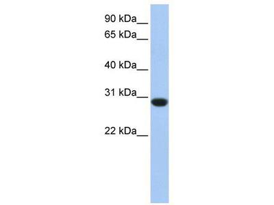 Rabbit Polyclonal Anti-ASB12 Antibody