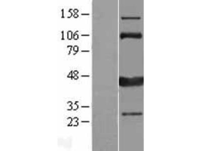 Transient overexpression lysate of calcium/calmodulin-dependent protein kinase ID (CAMK1D), transcript variant 2