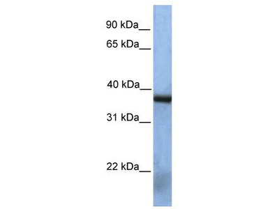 Rabbit Polyclonal Anti-NAT12 Antibody