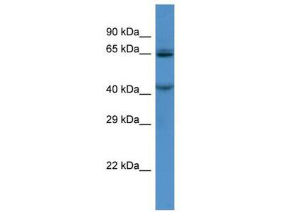 Rabbit Polyclonal Anti-TMC7 Antibody