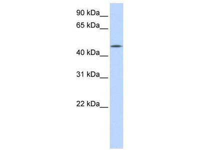 Rabbit Polyclonal Anti-CCM2L Antibody