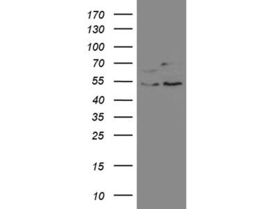 SS18 mouse monoclonal antibody,clone OTI4F11