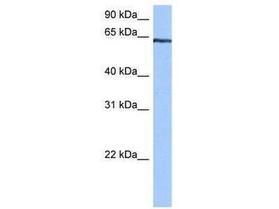 Rabbit Polyclonal Anti-TTC6 Antibody