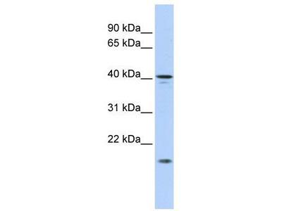 Rabbit Polyclonal Anti-SLAIN1 Antibody