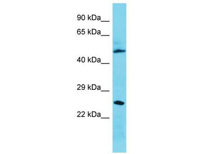 Rabbit Polyclonal Anti-CMSS1 Antibody