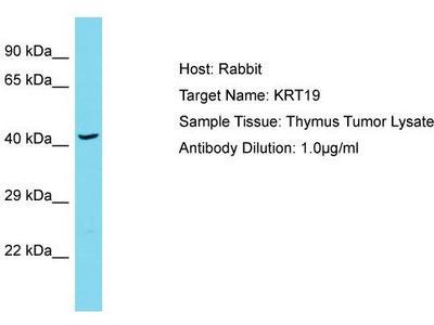 Rabbit Polyclonal Anti-KRT19 Antibody