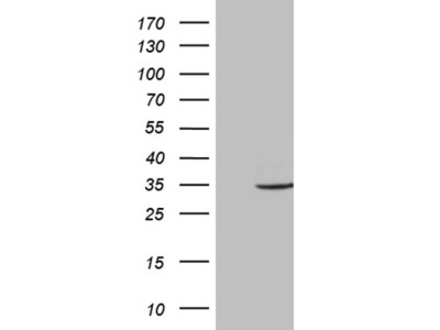 ABCB1 mouse monoclonal antibody,clone OTI10C1