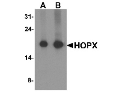Rabbit Polyclonal Anti-HOPX Antibody
