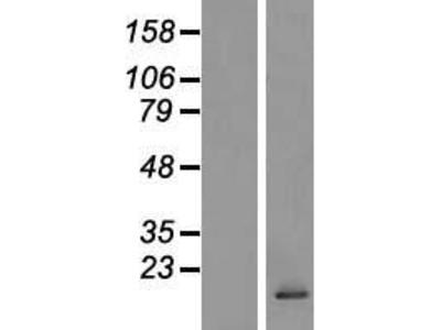 Transient overexpression lysate of chemokine (C-C motif) ligand 28 (CCL28)