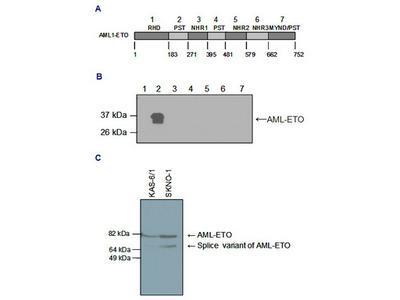 Rabbit Polyclonal AML-ETO Antibody