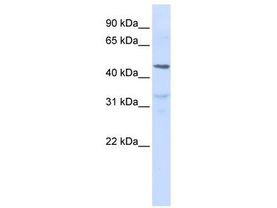 Rabbit Polyclonal Anti-IL28RA Antibody
