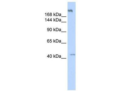 Rabbit Polyclonal Anti-POLR3A Antibody