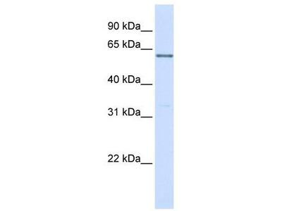 Rabbit Polyclonal Anti-PPP2R3B Antibody