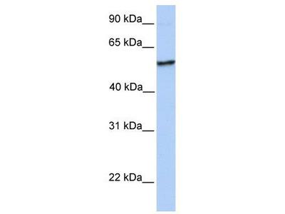 Rabbit Polyclonal Anti-NUDCD1 Antibody