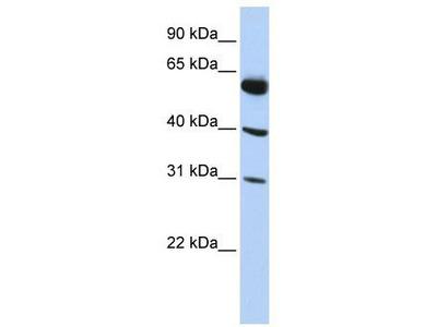 Rabbit Polyclonal Anti-LYSMD4 Antibody