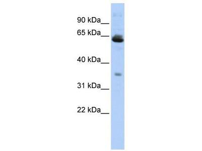 Rabbit Polyclonal Anti-TOMM40L Antibody