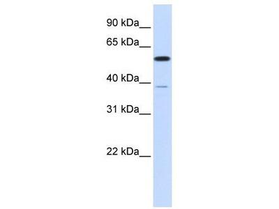 Rabbit Polyclonal Anti-PPP2R5A Antibody