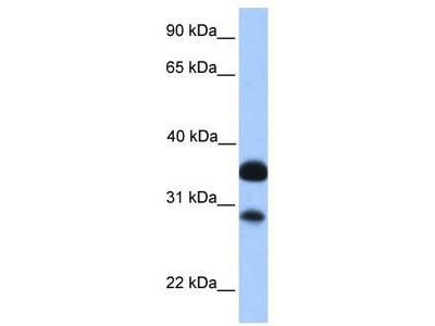Rabbit Polyclonal Anti-CITED2 Antibody