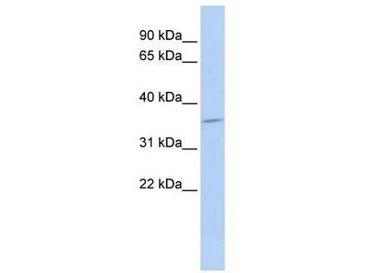 Rabbit Polyclonal Anti-SULT1C4 Antibody