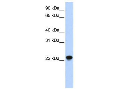 Rabbit Polyclonal Anti-ARL8A Antibody