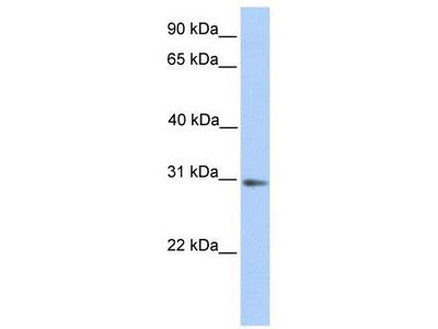 Rabbit Polyclonal Anti-ABHD13 Antibody