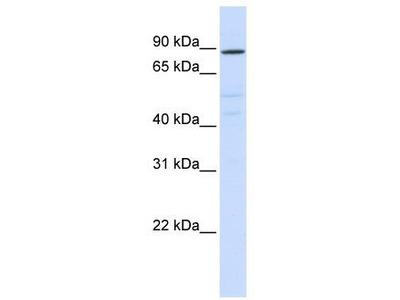 Rabbit Polyclonal Anti-ATP6V0A2 Antibody