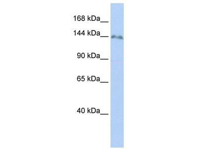 Rabbit Polyclonal Anti-ZNF862 Antibody