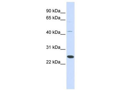 Rabbit Polyclonal Anti-METTL21A Antibody