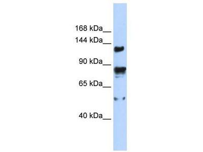 Rabbit Polyclonal Anti-TRPM4 Antibody