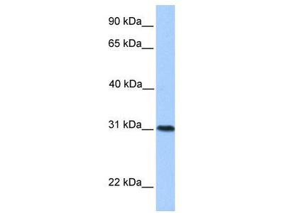 Rabbit Polyclonal Anti-HELT Antibody