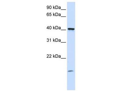 Rabbit Polyclonal Anti-TMEM79 Antibody