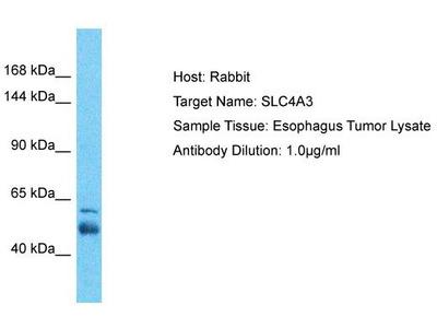 Rabbit Polyclonal Anti-SLC4A3 Antibody